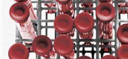 Die nächste Generation: Neuentwicklungen in der Pharma-Branche: Positiver Schub | Nachricht | finanzen.net