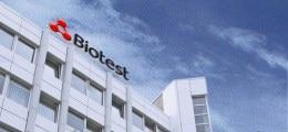 Hier stimmt was nicht!: Biotest und ThyssenKrupp: Richtig rechnen!   Nachricht   finanzen.net